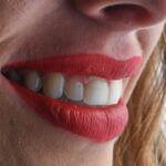 facettes céramiques dentiste Mathieu Benichou