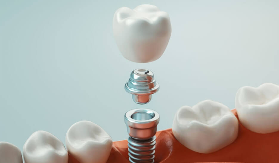 implantologie Dr Benichou